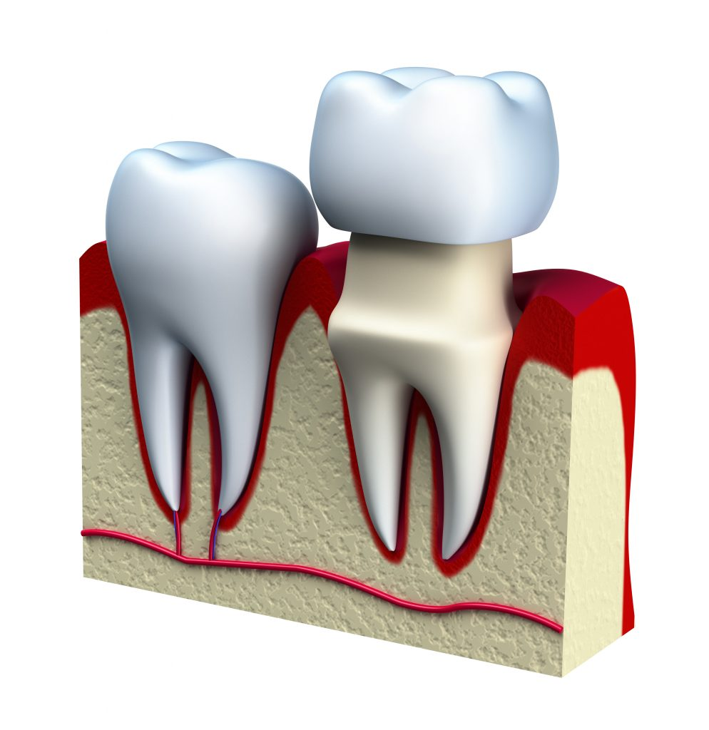 Dental crown installation process in Tigris Dental Care Liverpool