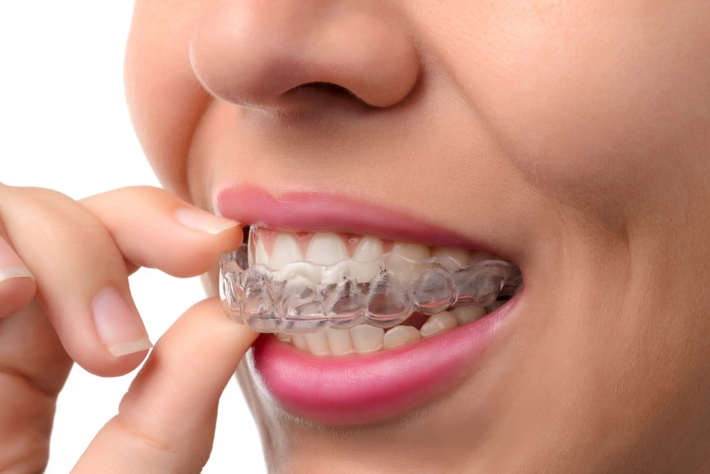 Invisalign adn Orthodontic